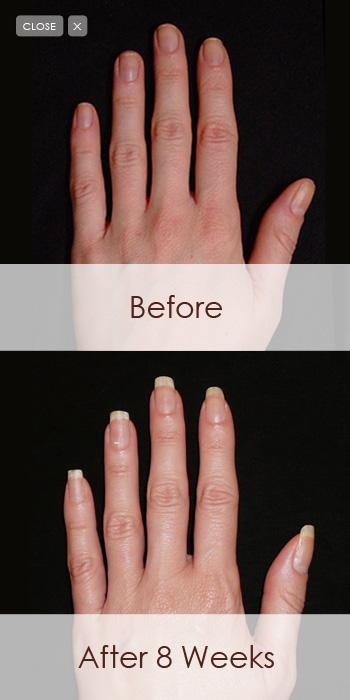 gel for nails nail picture art. Black Bedroom Furniture Sets. Home Design Ideas
