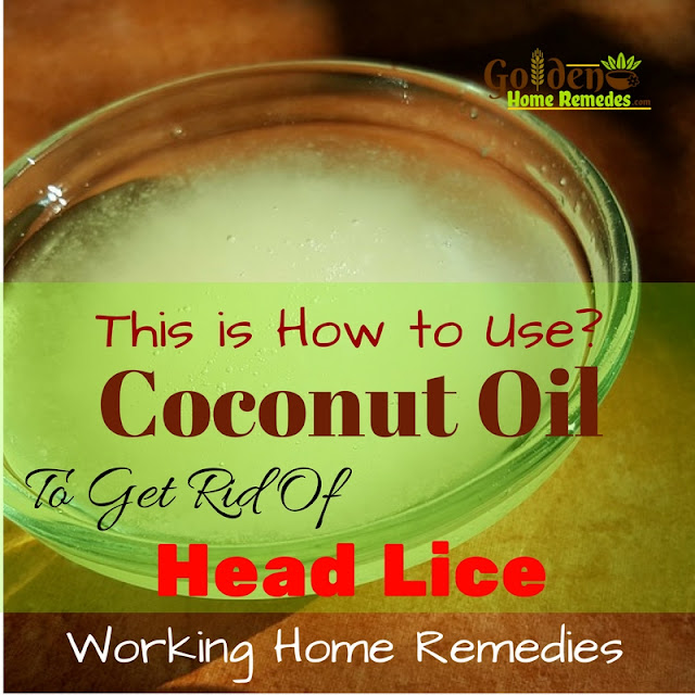 Coconut Oil For Lice, Coconut Oil For Head Lice, Coconut Oil Head Lice, Coconut Oil And Head Lice, Is Coconut Oil Good For Head Lice, How To Use Coconut Oil For Head Lice, Head Lice Treatment, How To Get Rid Of Hair Lice, Home Remedies For Head Lice, Head Lice Home Remedies,