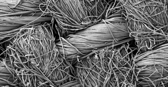 As coisas mais bizarras que você sempre quis ver no microscópio - Tecido de algodão
