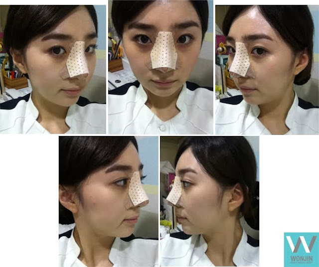 짱이뻐! - Korean Rhinoplasty's Sharp and Sophisticated Nose