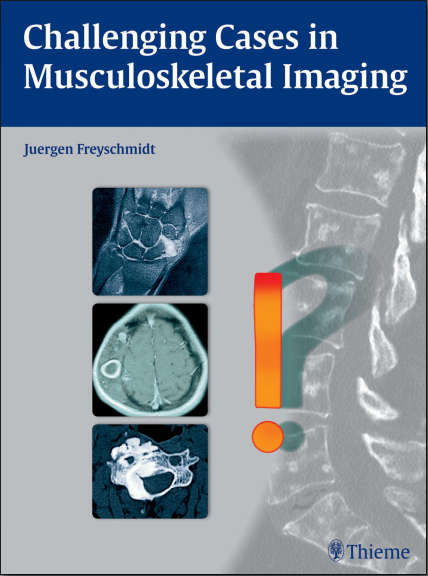 Challenging Cases in Musculoskeletal Imaging (May 27, 2015)