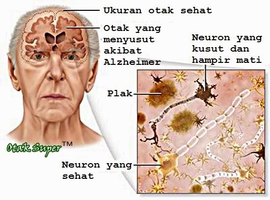 hal yang menyebabkan orang menderita alzheimer