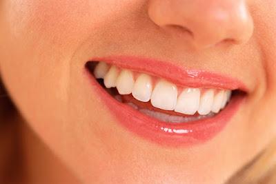Cara Mudah Untuk Mencegah Kerusakan Gigi