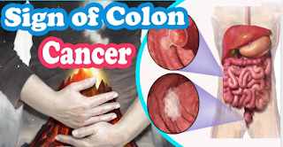 Common Signs collon cancer