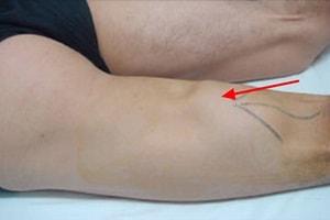Cara Menyembuhkan Cedera Hamstring
