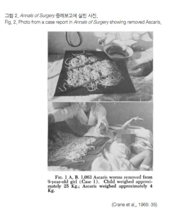[유머] (혐주의) 한국에서 기생충이 줄어든 계기 -  와이드섬