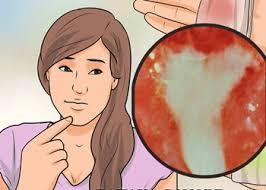 kemaluan perempuan berdarah