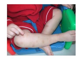 مشكلة نقص الصفائح الدموية عند الاطفال