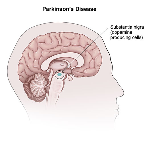 Parkinson hastalığı Konya