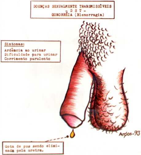Может ли заразиться мужчина через анальный секс от больной ганореей