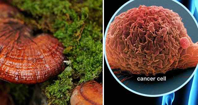 9 Amazing Cancer Cures That You Won't Hear From Your Doctor