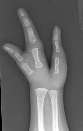 Congenital Hand And Arm Differences: Congenital Hand And Arm Differences: January 2015