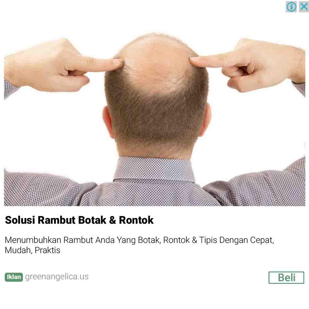 hair tonic penumbuh rambut, hair tonic, obat rambut, hair tonic green angelica