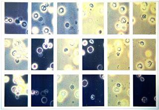 tratamiento celulas madre regeneradoras