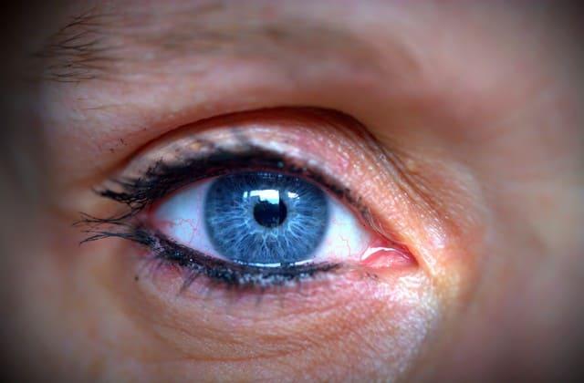 7 Cara Menghilangkan Kerutan Dibawah Mata Ini Tak Kalah dengan Perawatan Klinik