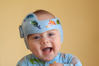 Plagiocephaly Treatment with Helmet