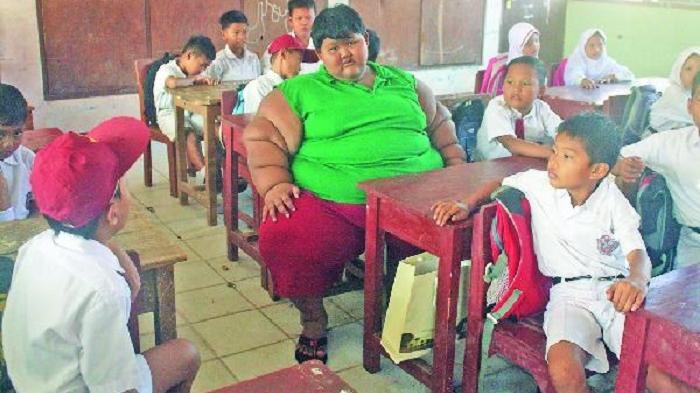 Arya, Bocah Obesitas, Berhasil Turunkan Berat Badan