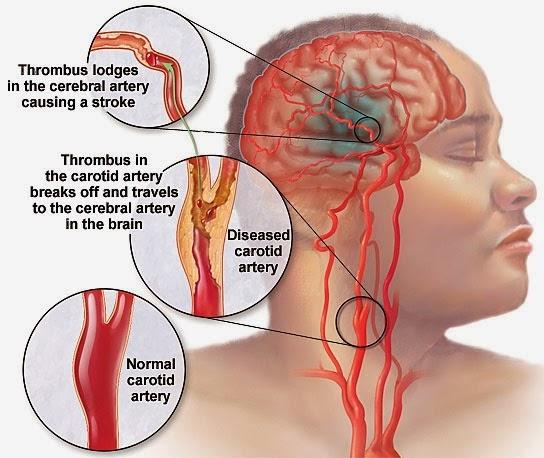 obat tradisional gejala stroke