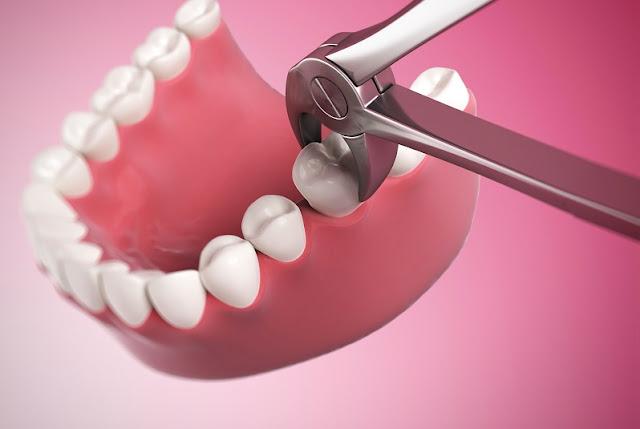 تفسير رؤية الأسنان و الضروس في المنام