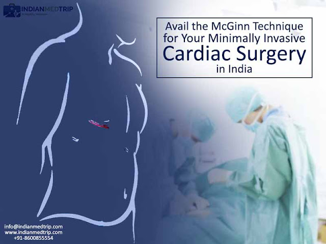 Avail the McGinn Technique for Your Minimally Invasive Cardiac Surgery in India
