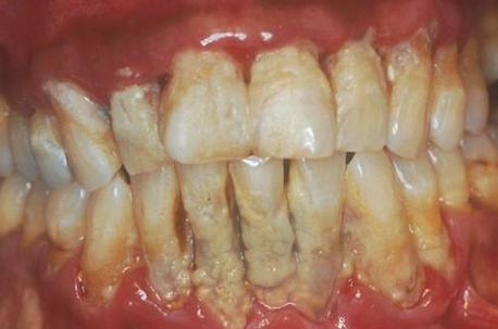 7 Cara untuk Menyingkirkan Plak pada Gigi