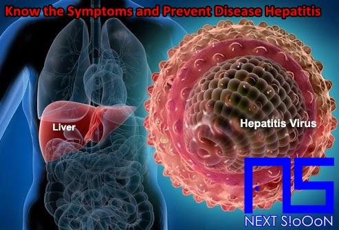 Hepatitis Disease, Hepatitis Disease Information, Hepatitis Disease Article, Hepatitis Disease Information, Hepatitis Symptoms, Causes of Hepatitis Disease, Factors Causing Hepatitis Disease, Hepatitis Disease Impacts, Hepatitis Medication, Relief of Hepatitis Symptoms, Overcoming Hepatitis Symptoms, Hepatitis Disease Symptoms, Hepatitis Disease Management , Things to do with Hepatitis, What is Hepatitis, Definition of Hepatitis, Information on Understanding Hepatitis, Symptoms of Cause and How to Overcome Hepatitis, Hepatitis Detail Info, Tips to Relieve Hepatitis, Tips to Overcome Hepatitis Disease, Overview of Information About Hepatitis, recognize the causes and symptoms of Hepatitis, prevent Hepatitis by knowing the symptoms and causes.