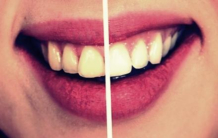 45 Cara Memutihkan Gigi Kuning Secara Alami Dan Terbukti Ampuh