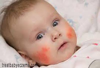 Baby Skin Eczema