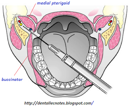 Dentistry lectures for MFDS/MJDF/NBDE/ORE: August 2014