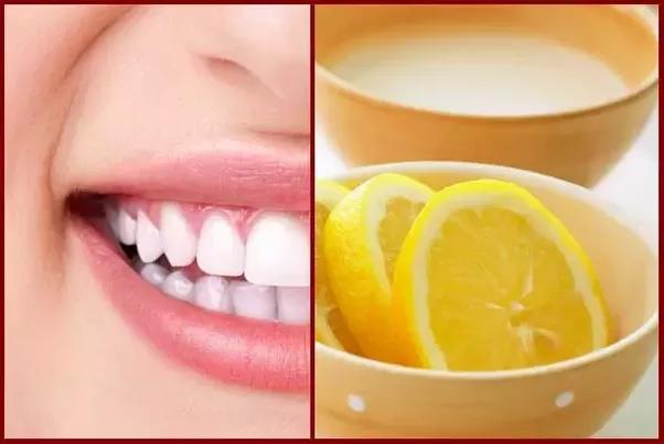 Coba 5 Cara ini Agar Gigi Anda Putih Alami dan Permanent  7aade83e06