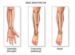 Tips Mengatasi Masalah Tulang