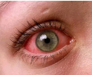 7 Causes,Treatment And Warnings Of Eye Pain - Stop Eye Pain