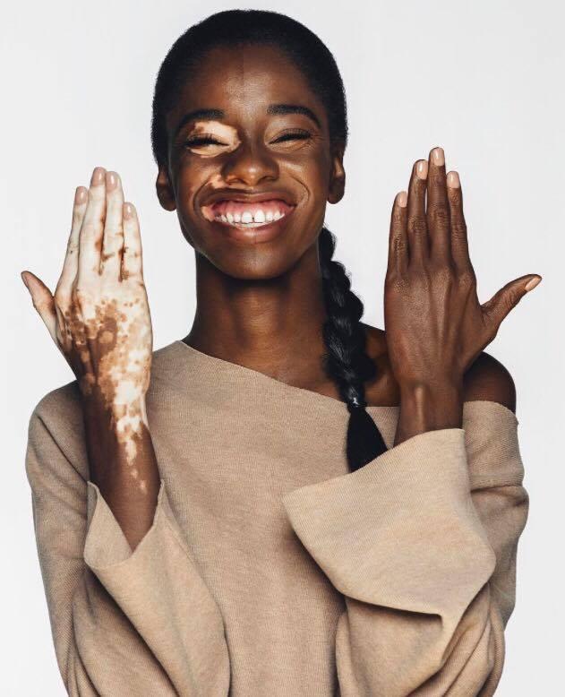 El Vitiligo de Aiesha Robinson - Born To Rise.