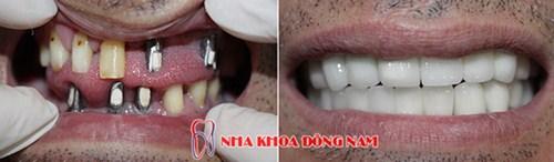 Giá Cấy Ghép Implant Tốt Nhất Hiện Nay -14