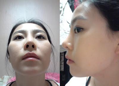 sebelum korea face contouring surgery di Wonjin Plastic Surgery