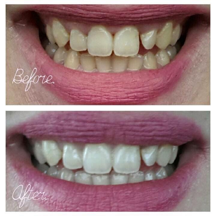 tanden bleken met baksoda