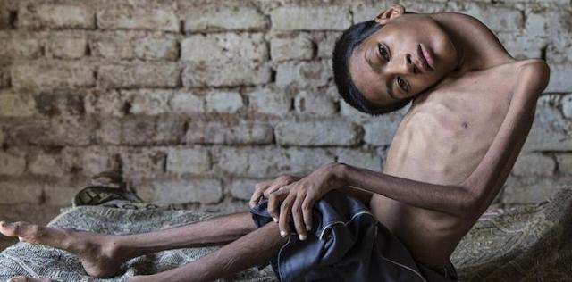 Bantu Share...! Kisah Nyata, Remaja Dengan Kepala Miring 180 Derajat Ini Akhirnya Dioperasi