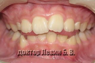 Аномальное положение языка, язык выдавливает зубы наружу, фотография.