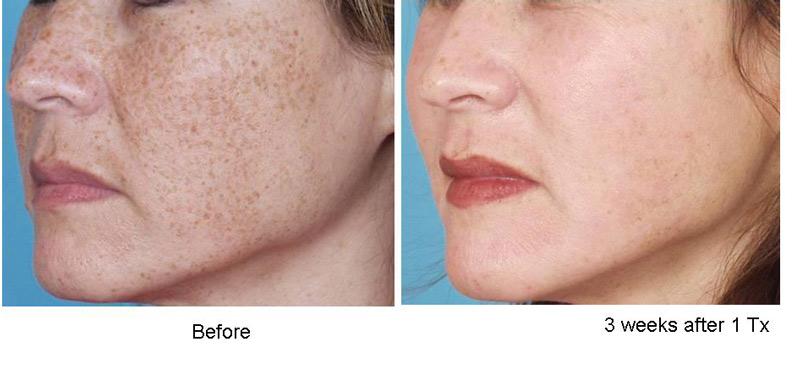 Facial lipoatrophy cause ipl