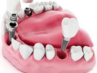 pareri pretul unui implant dentar alpha bio