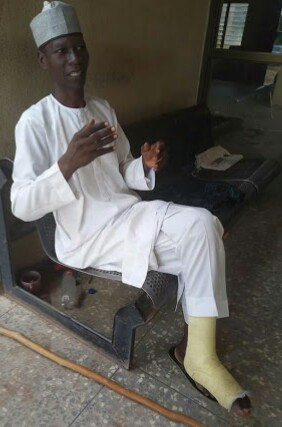Man Who Trekked To Abuja For Buhari Develops Legs Injury