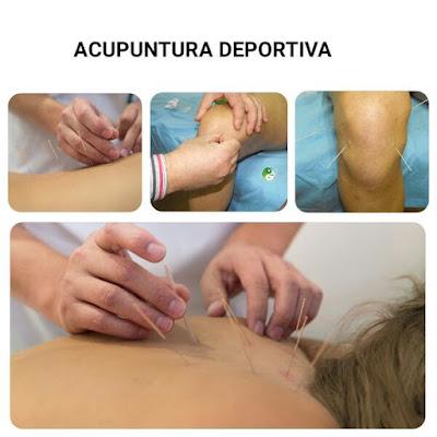 http://www.eanta.es/seminarios-y-talleres/acupuntura-deportiva/