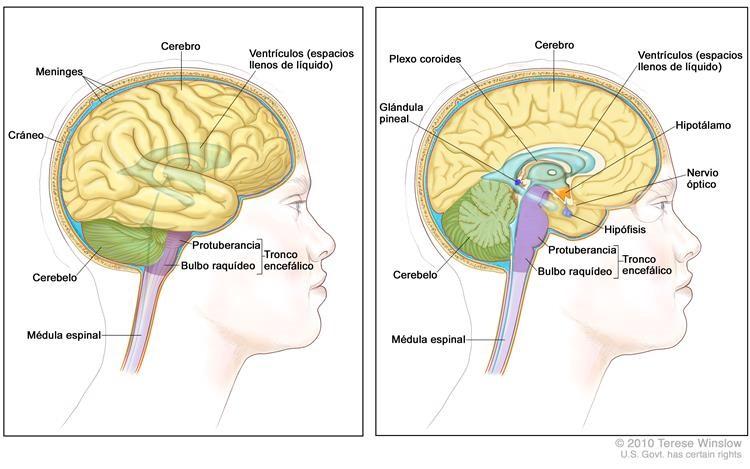 Tumores cerebrales Otros nombres: Cáncer cerebral, Cáncer de cerebro ...
