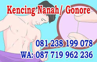 Obat untuk kencing nanah dijual di Yogyakarta