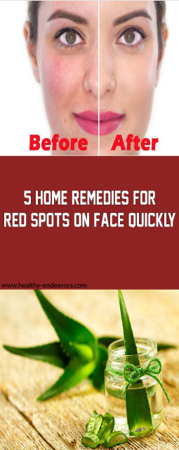 5 home remedies for red spots on face quickly