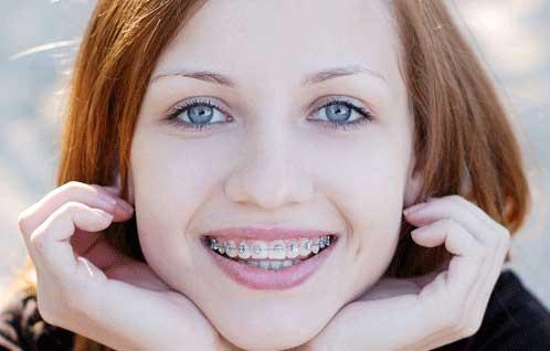 Dental Clinic Jakarta Selatan Gigi Tonggos Karena Kawat Gigi