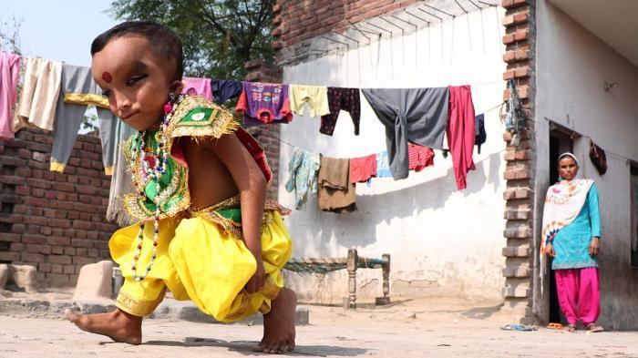 Prashu, Bocah Yang Dianggap Reinkarnasi Dewa Ganesha Di India