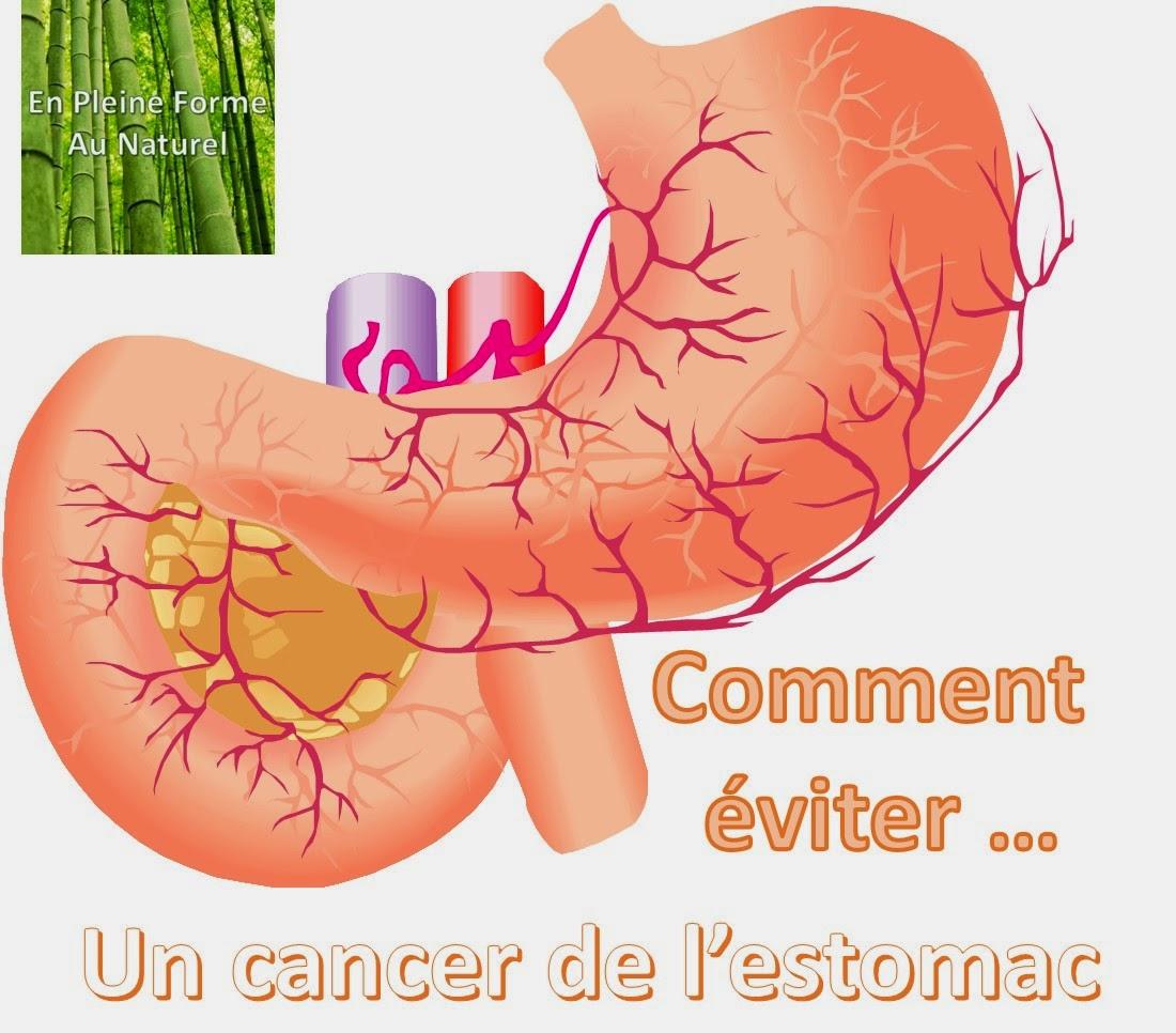 Comment viter un cancer de l 39 estomac - Comment nettoyer de l etain ...