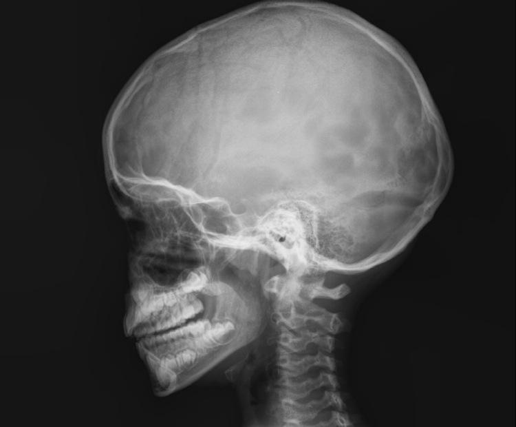 Aprendiendo con la Radiologa Radiografa de crneo lateral