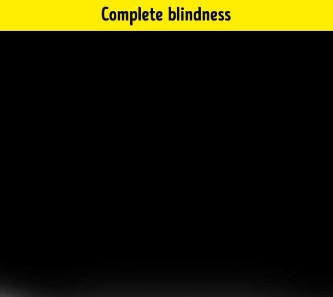 Complete blindness seems like a perfect theme. A blind man will not describe the world around him as black or dark, because he simply does not know what these two colors are. They do not even see anything in their dreams.